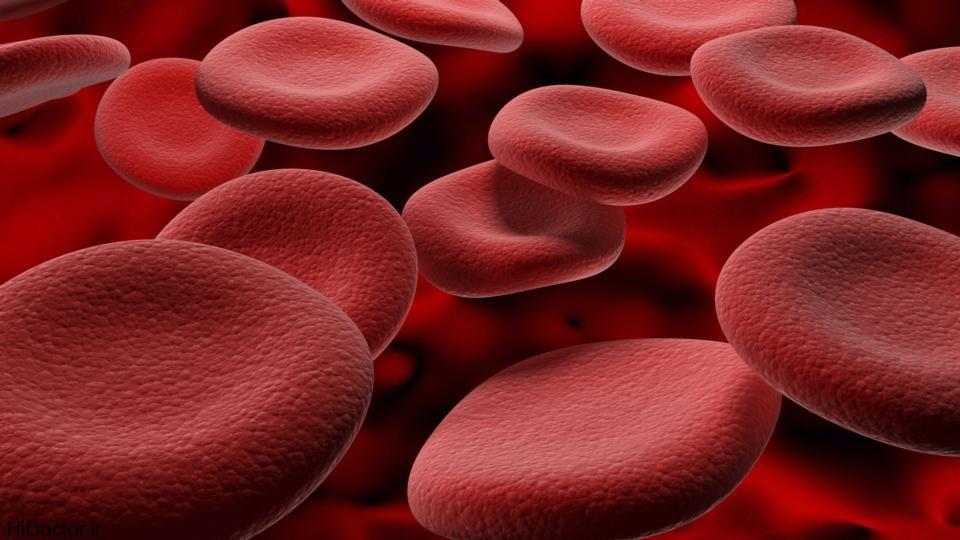 رابطه آهن خون بالا با چاقی