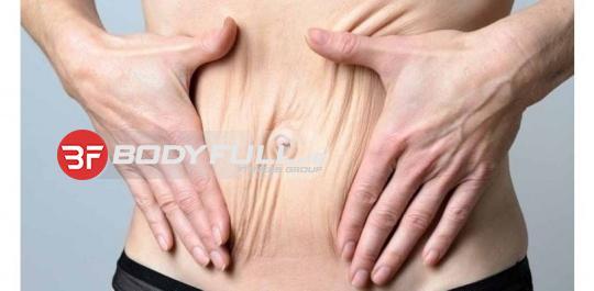 افتادگی پوست در رژیم لاغری
