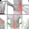 درد عضلات