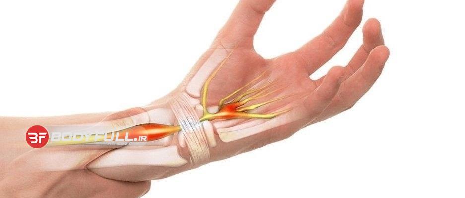 درمان سریع تونل مچ دست یا تونل کارپال