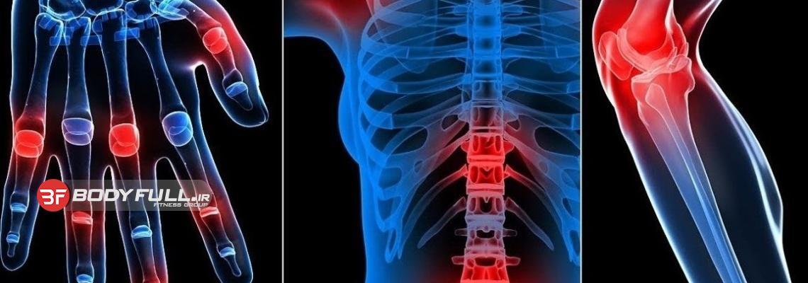 انواع التهاب مفصلی